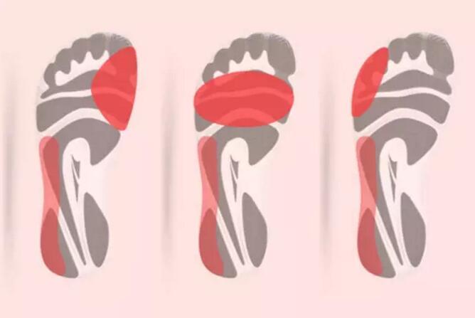 麦乐告诉你如何通过一双旧鞋底的磨损区了解自己的步伐,及如何购买合适的跑鞋?